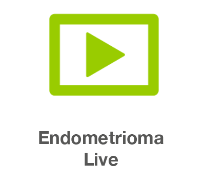 Endometrioma Video